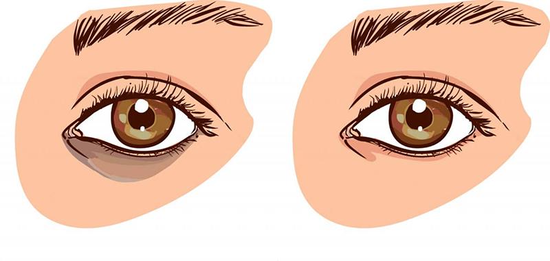 Отёки и мешки под глазами